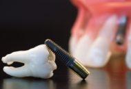 Prothese op implantaten: de procedure
